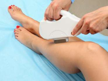 Laser Hair Removal – Painless and Permanent